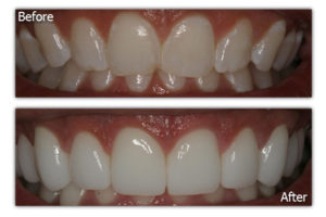 Dental Veneers - Before and After - Patient 1