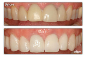 Dental Veneers - Before and After - Patient 7